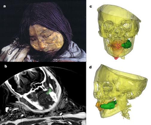 Одна изисследованных мумий <nobr>когда-то</nobr>была 13-летней девочкой. Ееназвали<span style=